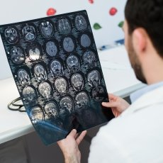 Doctor looking at ex rays of brain and skull